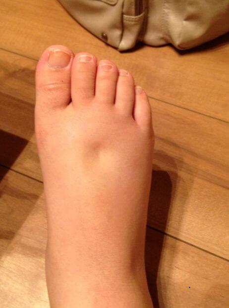 足のむくみ気持ち悪いむくみ取り対策は?